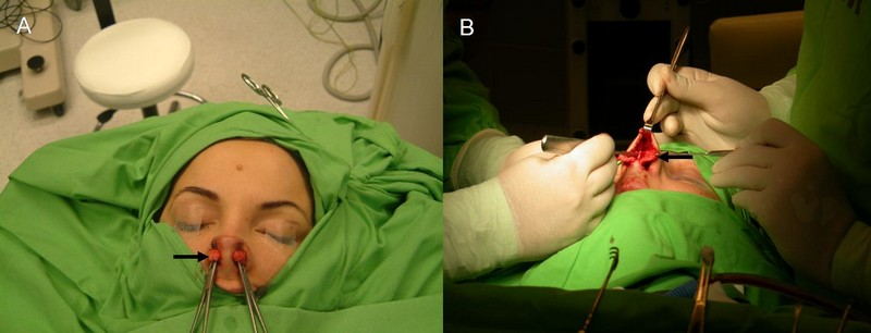 korrekciós műtét
